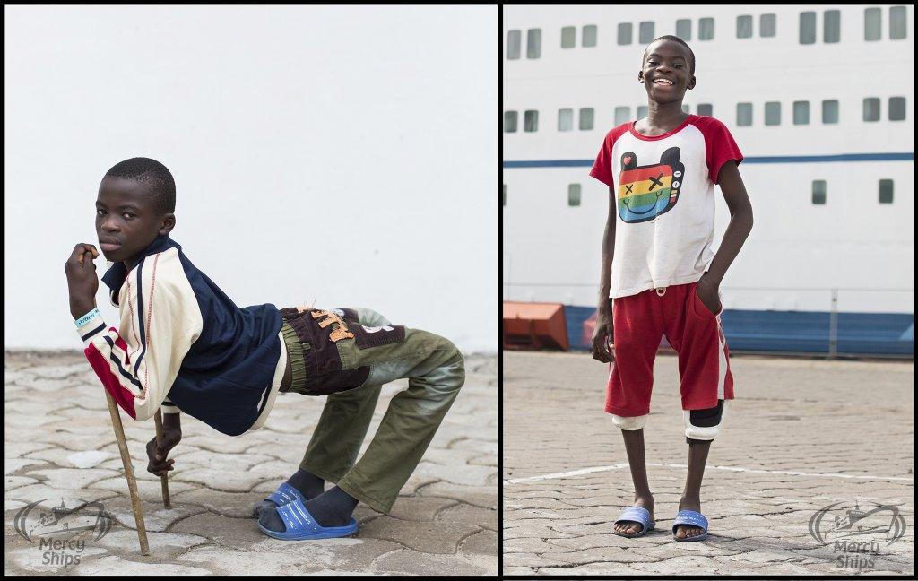 picture of a boy before and after leg surgery on the mercy ships